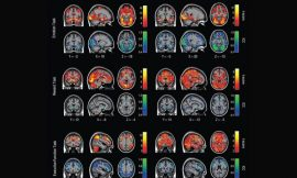 Duke scientist questions his own research with new study faulting task fMRI