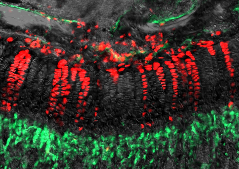 """Neurologists warn of the danger of """"stem cell tourism"""""""