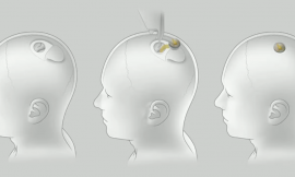 ProBeat: Hey Elon Musk, how do I get this Neuralink out of my skull?